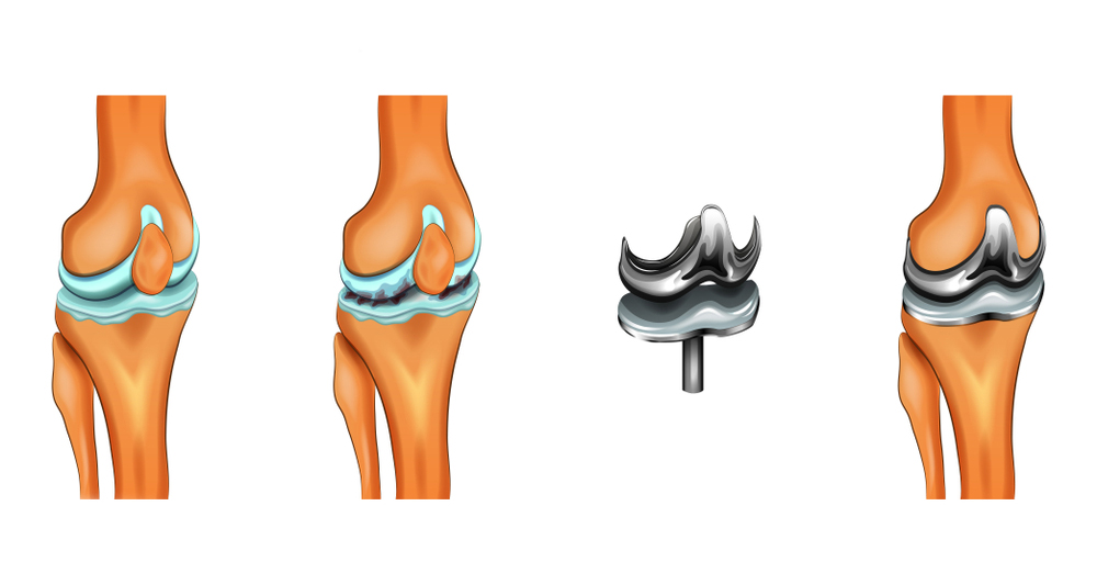 Fast track knee replacement